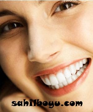 lamina diş, lamina diş fiyatları, ön dişler