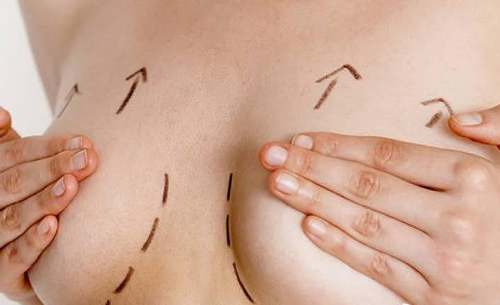 göğüs dikleştirme, göğüs dikleştirme ameliyatı, göğüs dikleştirme ameliyatı öncesi