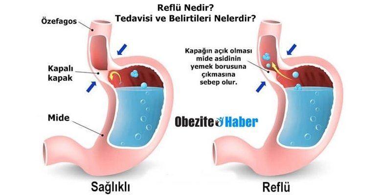 reflü tedavisi, reflü tedavisi yapımı, reflü nasıl tedavi edilir