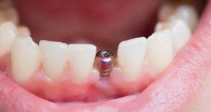 implant uygulaması