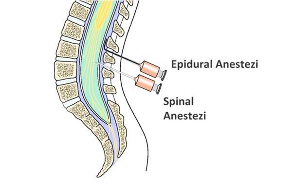 epidural blok, epidural blok ne demek, epidural blok nerelerde kullanılır