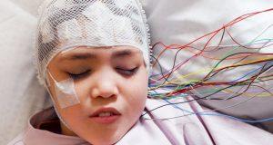 epilepsi nedenleri, çocuklarda epilepsi nedenleri, çocuk epilepsi tedavisi