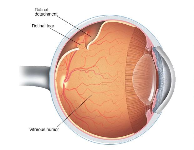 retina dekolmanı ne demek, retina yırtığı nedir, retina yırtığı ne demek